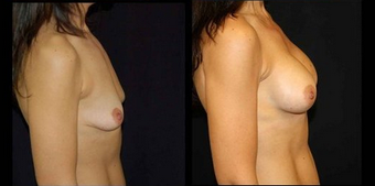 Breast Implants 150831