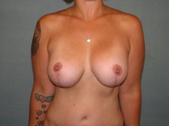 breast lift with augmentation after 348052