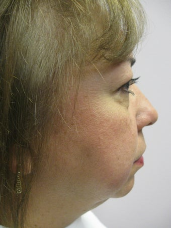Chin Implant before 340063