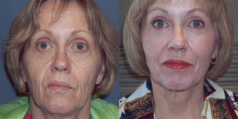 CO2 Laser skin resurfacing before 78396