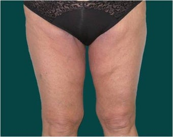 Thigh lift after 589899