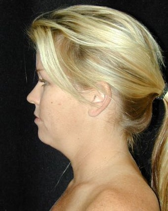 Liposuction of the Chin before 214684
