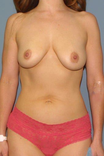 Breast augmentation /implant before 539061