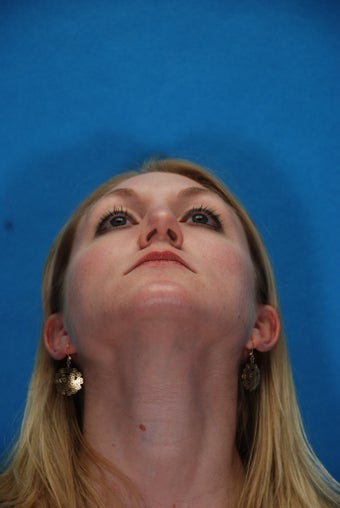 Rhinoplasty (nose job, nasal surgery) after 291569