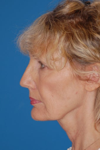 Neck Lift after 504476