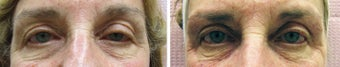 Eye Rejuvenation Restylane before 315010