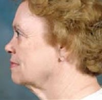 Facelift and Blepharoplasty before 209326