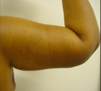 BRACHIOPLASTY (ARM LIFT) after 490940