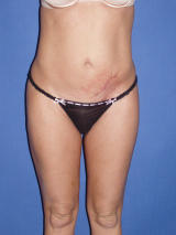 Tummy Tuck Surgery before 124891