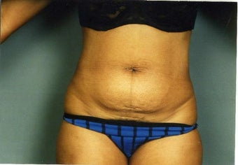 Mini Tummy Tuck before 215155