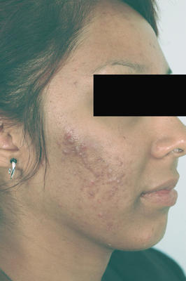 Laser Acne Treatment before 82974