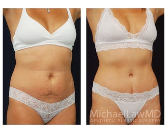 Abdominoplasty - Tummy Tuck after 396139