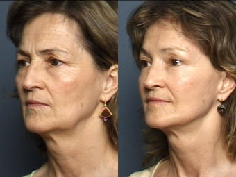 Eyelid Surgery & Facelift 337408