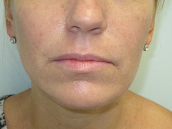 Lip Augmentation with Juvederm before 590715