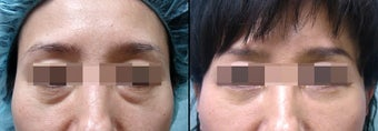Lower Eyelid(Blepharoplasty) Surgery before 650502
