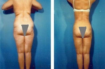 Liposuction before 636165