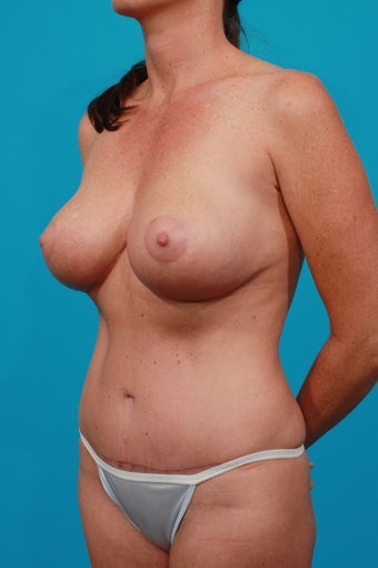 Mommy Makeover: Tummy Tuck, Breast Lift, Flank Lipo after 250635
