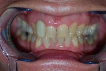 Invisalign to replace a HIDEOUS crown/tooth before 368173