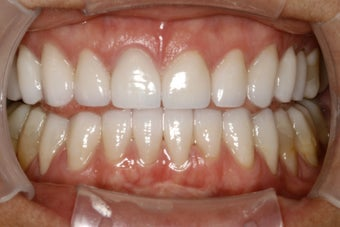Full Mouth Smilemaker after treating TMJ after 487014