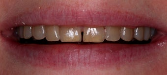 Composite veneers along with whitening before 45950