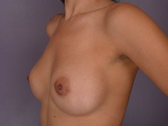 Breast Augmentation before 338718
