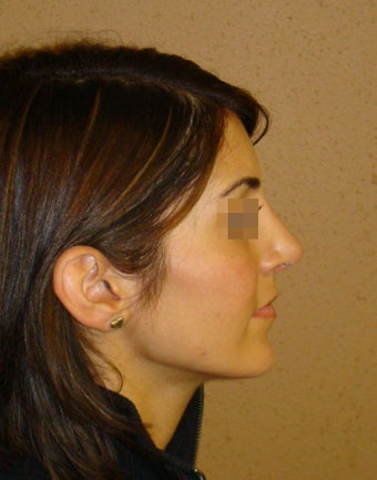 Rhinoplasty/nose job surgery after 597696