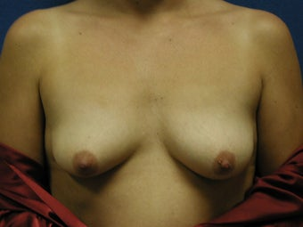 Mastopexy and Breast Augmentation before 475919