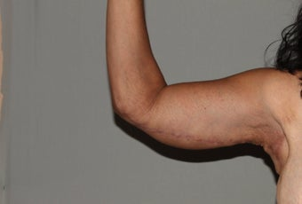 Arm Lift-Brachioplasty after 607363