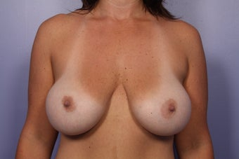 Breast Implants after 307917