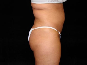 Liposuction of Abdomen, Waist, Flanks, and Inner/Outer Thighs before 203476
