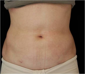 SlimLipo Abdomen Showing Skin Tightening after 97356