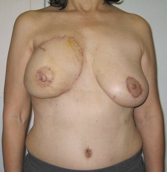Nipple Reconstruction after 523521
