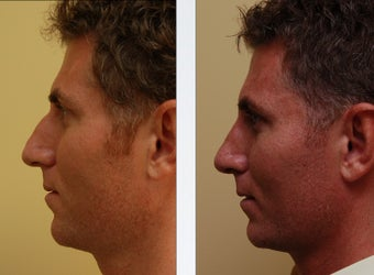 Rhinoplasty before 314277