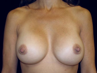 Breast Implant Replacement after 506017