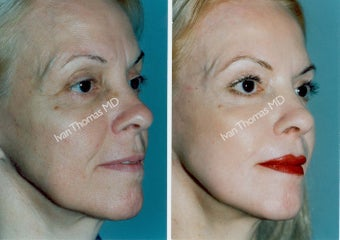 Non-Surgical Face Lift- Exoderm  before 242980