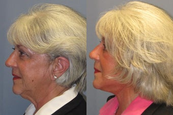 Lite Lift, Liposuction of the neck, Brow Lift, Blue Peel before 523496