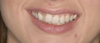 porcelain veneers before 363976