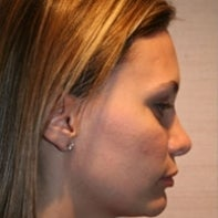 Revision Rhinoplasty after 443004