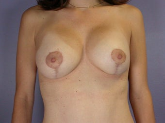 Breast Lift / Breast Augmentation    after 291037