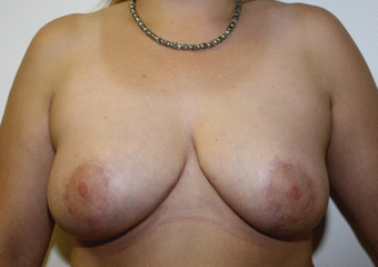 Breast Reduction after 391010