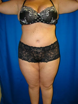 Extended Tummy Tuck, Back Lipectomy after 139078