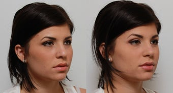 Non Surgical Nose Job Rhinoplasty after 553496