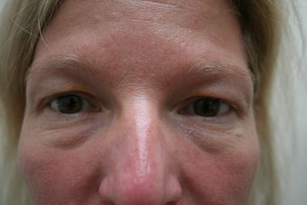 Blepharoplasty before 73284