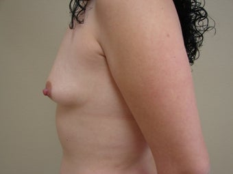 Saline Breast Augmentation Moderate Plus Profile 325 cc 339376