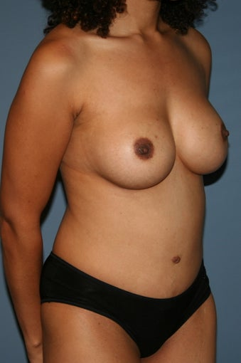 Mommy Makeover Breast augmentation and tummy tuck 617914