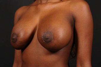 Areola reduction 567572