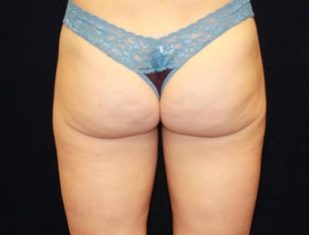 Liposuction of Saddlebags 494851