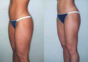 Liposuction (Thighs, Knees & Buttocks) before 350940