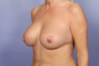 Breast Augmentation after 466416