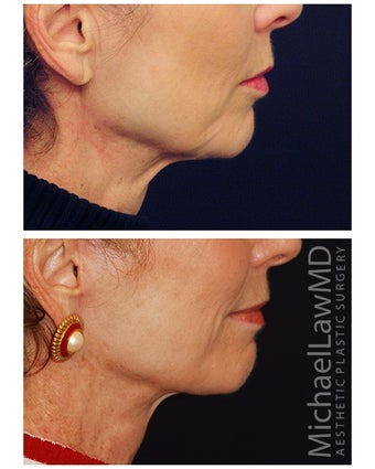 Lower Face and Neck Lift 355640